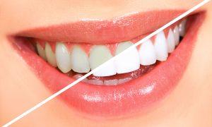 teeth-whitening3.jpg